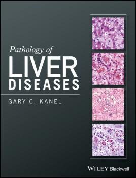 Pathology of Liver Diseases - Gary Kanel C.